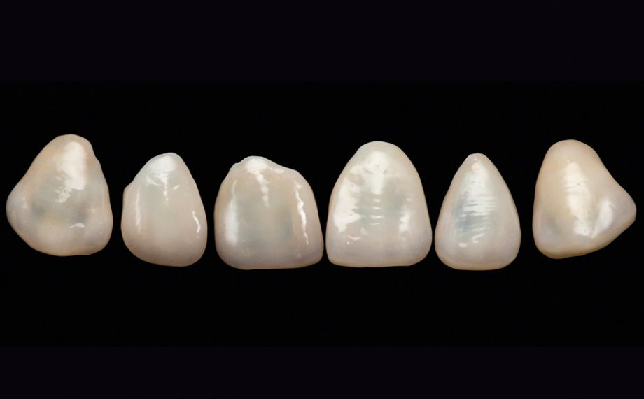 Fig. 13: Even before the try-in, the finished veneer restorations appeared absolutely natural.