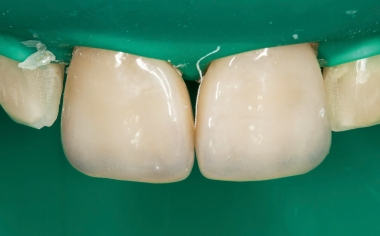 Fig. 14: After conditioning with hydrofluoric acid and silane, the veneers could be integrated with full adhesion.