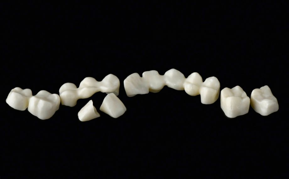 Fig. 3: The zirconia substructures with an anatomically reduced design.