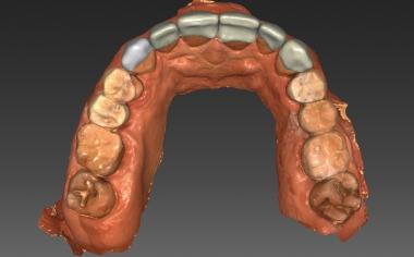Fig. 8 : La construction virtuelle des facettes du maxillaire en VITABLOCS TriLuxe forte.