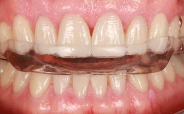 Fig. 14 : Une gouttière guidant les dents antérieuresa été posée après la reconstitution totale.