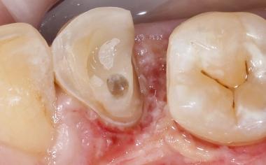 Fig. 3 : Lors de la préparation, on veilla à ne pas laisser d'arêtes vives dans la cavité.