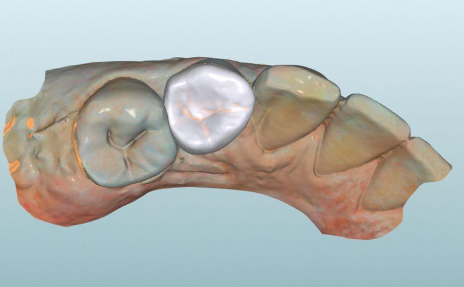 Fig. 8 : L'endocouronne virtuelle dans le logiciel CAO en vue occlusale.