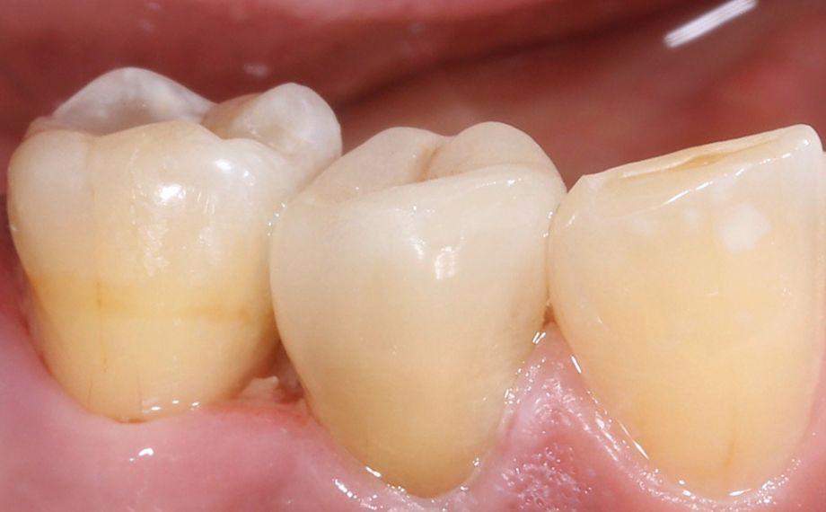 Fig. 12 : Aucune transition entre la restauration et la dent n'était visible, côté vestibulaire.