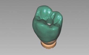 Fig. 6: Con il CAD-Software è stata progettata una corona-abutment con canale di avvitamento.