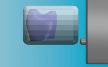 Fig. 7: Con il posizionamento verticale della corona nel blocchetto virtuale è possibile controllare l'andamento cromatico.