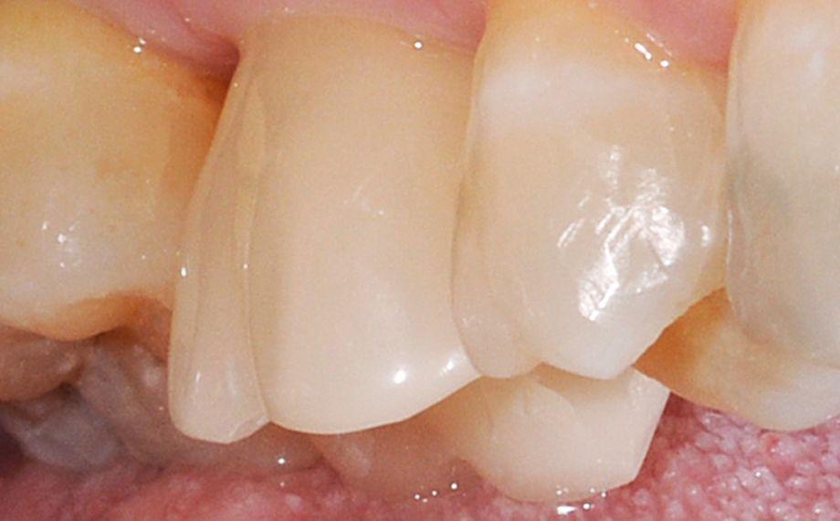 Fig. 11: Risultato: La corona-abutment si integra armoniosamente nella dentatura naturale residua.