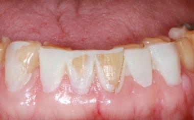 Fig. 6: E' stato possibile procedere all'asportazione di sostanza in modo controllato e quindi minimamente invasivo.