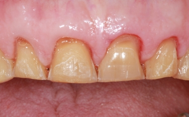 Fig. 5: Tras la estabilización protésica de la zona de los dientes posteriores, se llevó a cabo la preparación de mock-up.
