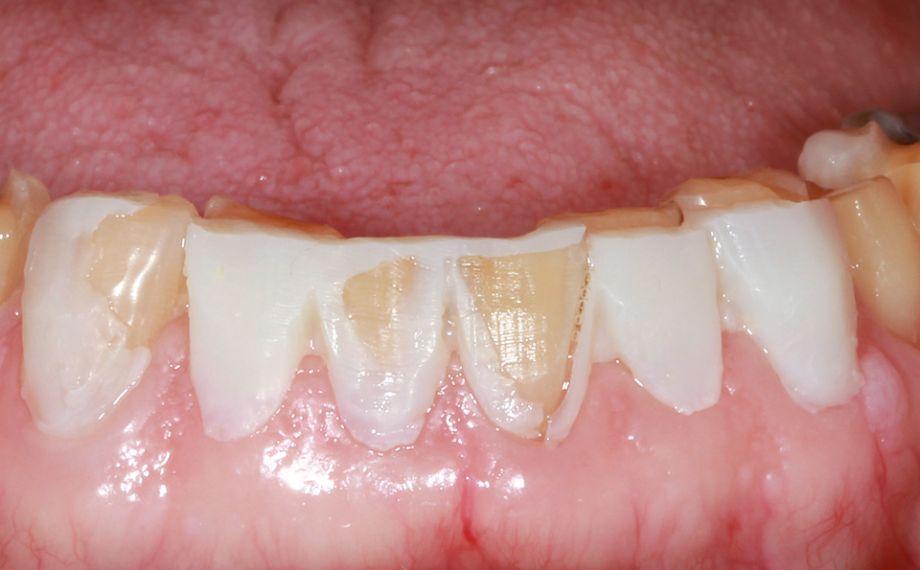 Fig. 6: La eliminación de sustancia se pudo llevar a cabo de manera controlada y lo menos invasiva posible.