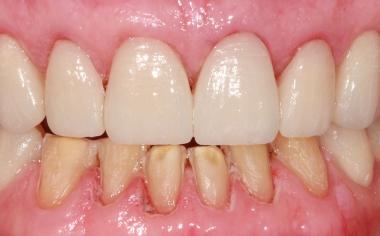 Fig. 11: Las carillas confeccionadas mediante CAD/CAM en la arcada superior, inmediatamente después de la colocación adhesiva.