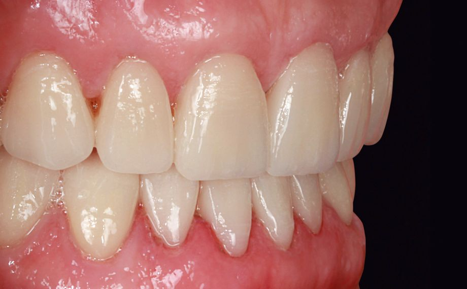 Fig. 12: Las carillas en la arcada inferior, inmediatamente después de la colocación adhesiva.