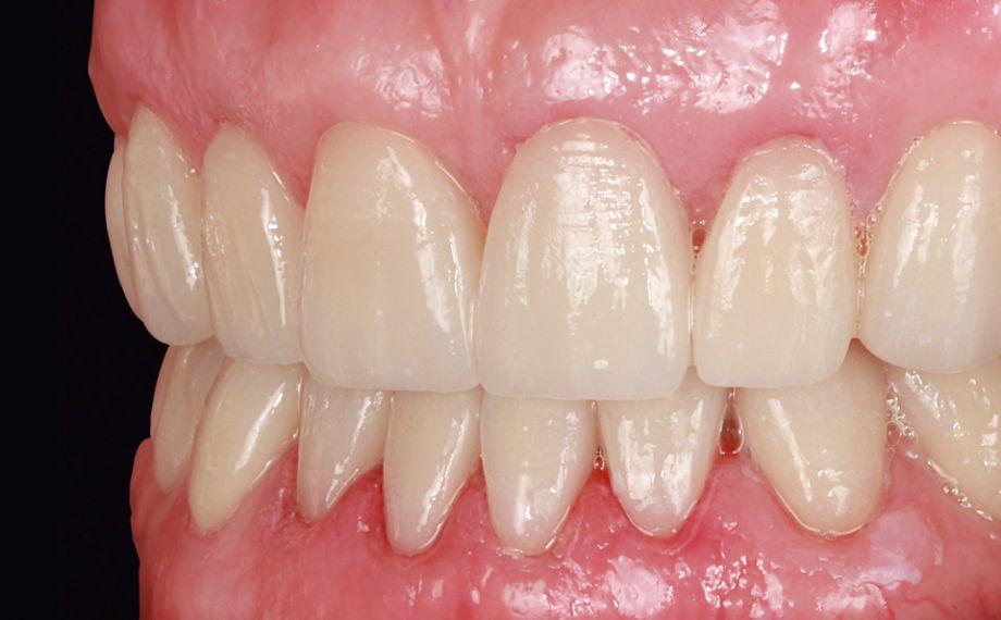 Fig. 13: Las zonas sometidas a gingivectomía en la arcada superior ya habían cicatrizado.