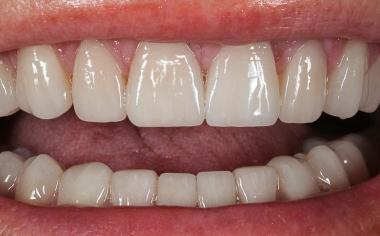 Fig. 16: Los bordes incisales armonizaban con el contorno de los labios.