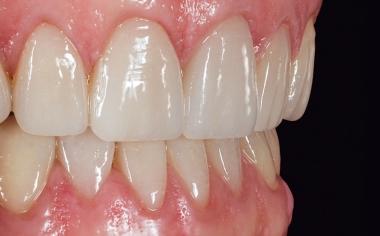 Fig. 17: Las carillas confeccionadas de forma eficiente presentaban un aspecto absolutamente natural.