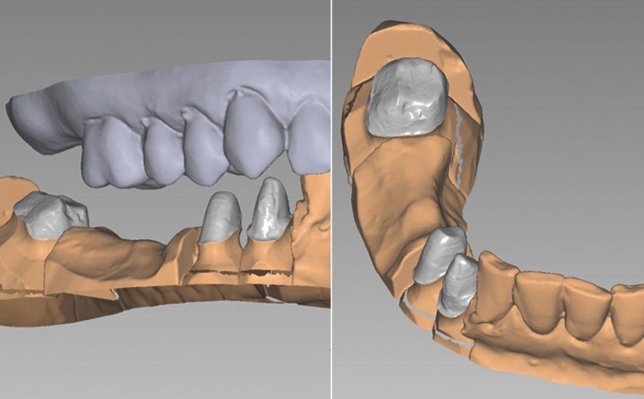Fig. 1: Situación de partida: Con muñones preparados en los dientes 43, 44 y 47.