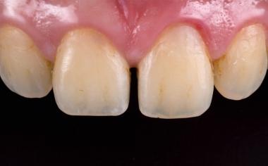 Fig. 1: Situación de partida: Paciente joven con diastema entre los dientes 11 y 21.