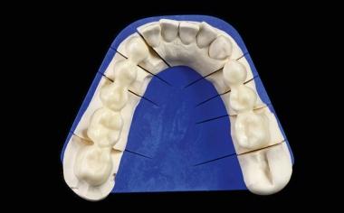 Fig. 5: Las dos estructuras de puente en la arcada inferior, antes de su prueba en boca.