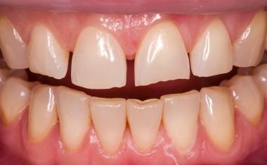 Fig. 1: La situación de partida con diastemas y fractura del borde incisal del diente 21.