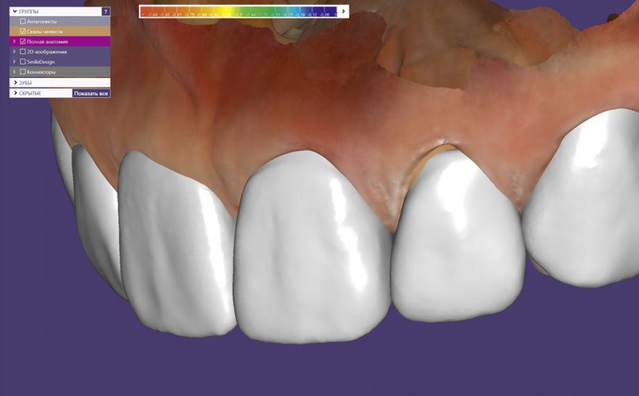 Fig. 3: El Smile Design (diseño de la sonrisa) virtual ayudó a diseñar un mock-up digital en el software exocad.