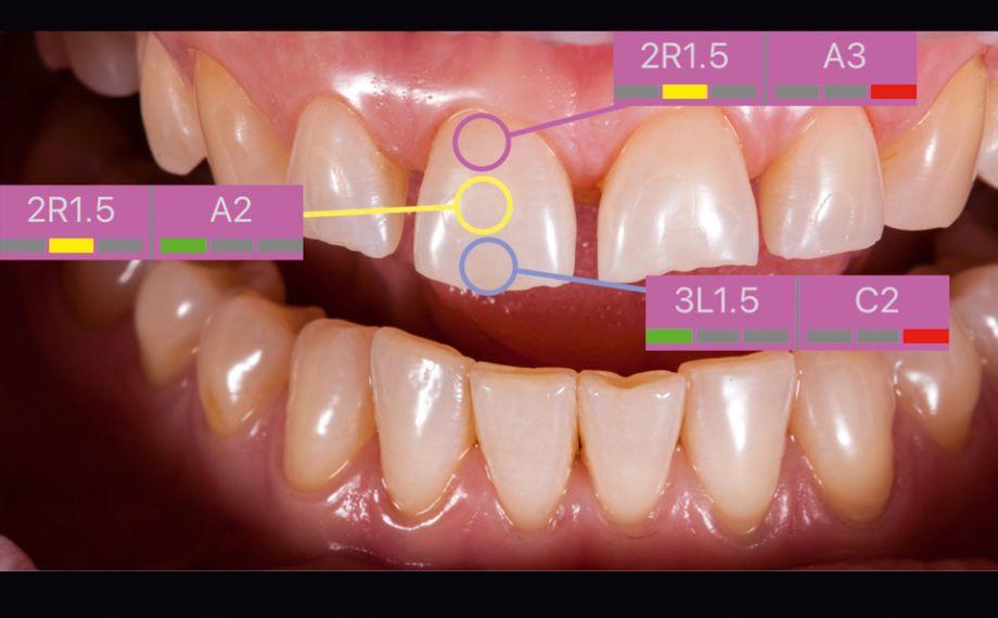 Fig. 5: Antes de la preparación se determinó con precisión y rapidez el color dental básico mediante el VITA Easyshade V.