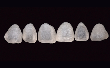 Fig. 11: Gracias a la finura de su grano, la cerámica de silicato de litio reforzada con dióxido de circonio VITA SUPRINITY PC posibilita un fresado muy preciso.
