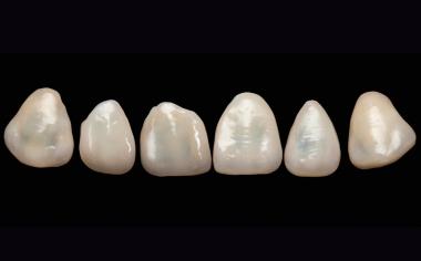 Fig. 13: Las restauraciones de carillas terminadas presentaban un aspecto absolutamente natural ya antes de la prueba en boca.