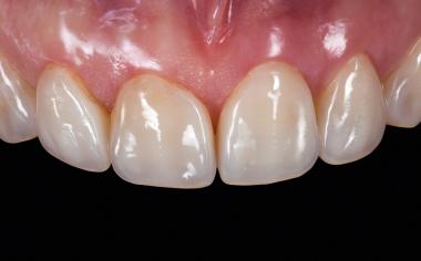 Fig. 15: Las carillas se integran en las arcadas dentarias naturales.