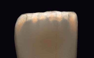 Abb. 1a: Opaleszenz. Abb. 1a-c Dokumentation der lichtoptischen Eigenschaften von VITA LUMEX AC mittels Fotografie vonexemplarischen Musterkronen unter Einsatz von unterschiedlichen Belichtungsarten und Lichtquellen.
