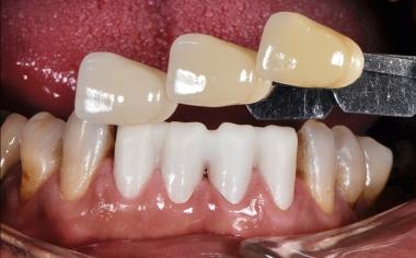 Abb. 1, Ausgangssituation: Gerüstanprobe und Zahnfarbbestimmung mittels VITA-Farbskala.