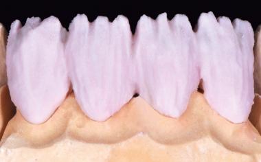 Abb. 3: Die Basisschichtung des Dentinanteils erfolgte mit DENTINE A3.