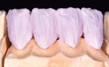 Abb. 5: Die zervikale Intensivierung mit A 3.5, lateral mit A 3.5 in Kombination mit etwas FLUO INTENSE sand.