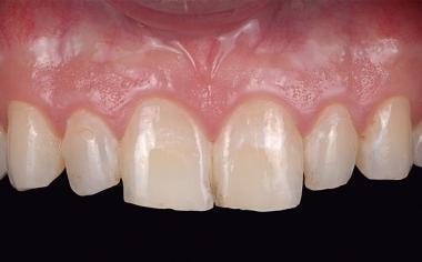 Abb. 2: Die Zahnfarbe und Whitespots störten den Patienten.