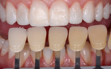 Abb. 6: Die Zahnfarbbestimmung erfolgte mit dem VITA SYSTEM 3D-MASTER.