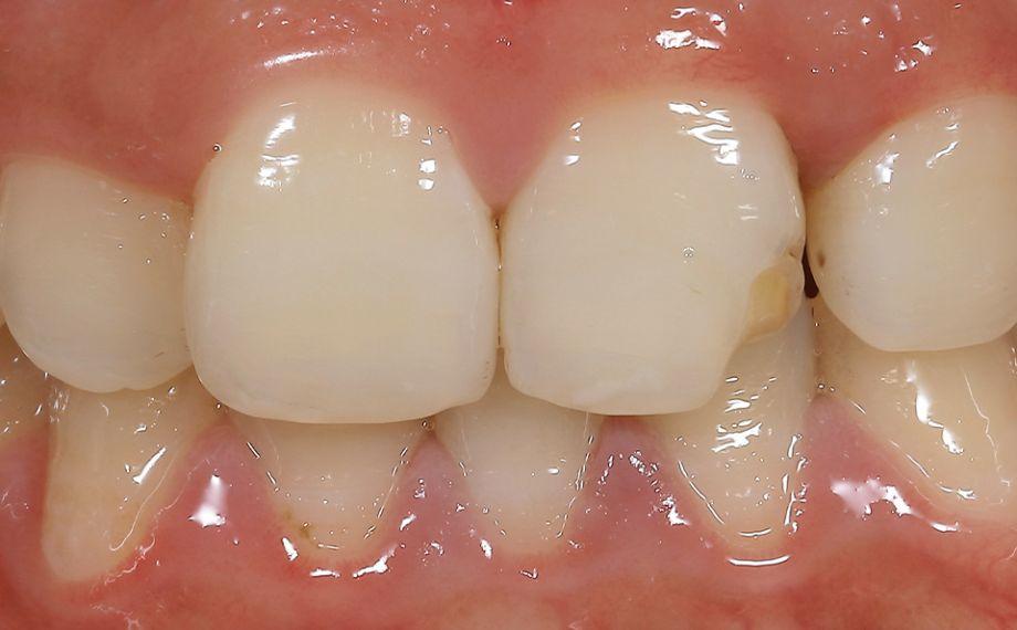 Abb. 1: Die Ausgangssituation mit dem frakturierten Zahn 21 bei der Erstvorstellung in der Zahnarztpraxis.