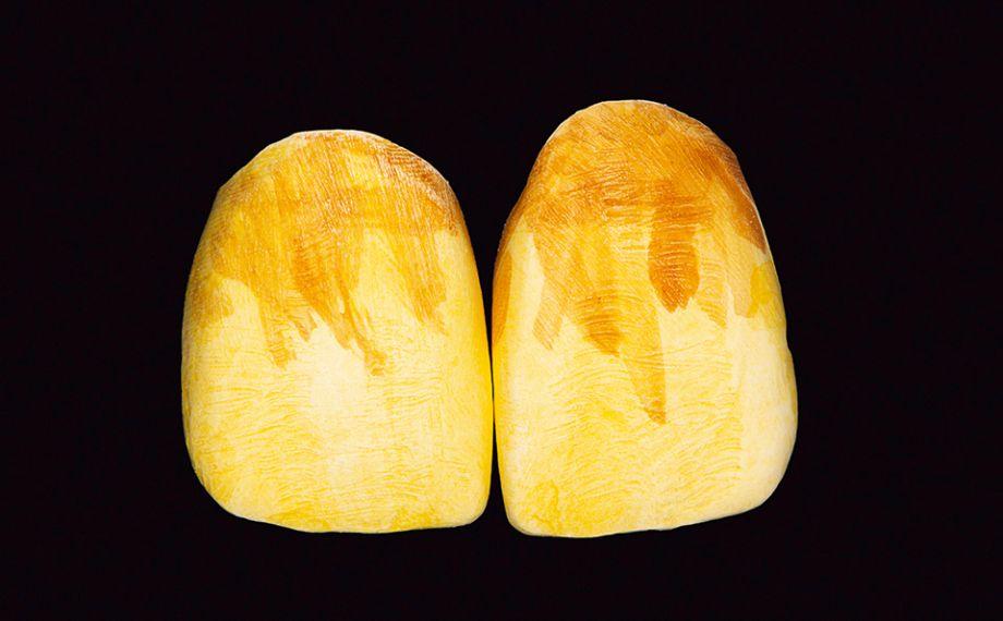 Abb. 10: Die Grundfarbe und das Chroma im zervikalen Drittel wurden mit Einfärbeflüssigkeiten in der Farbe D3 intensiviert.
