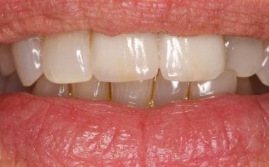 Abb. 16, Ergebnis: Die beiden Kronen fügten sich harmonisch in den natürlichen Zahnbogen ein und wirkten absolut natürlich.