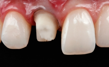 Abb. 1: Zahn 11 wurde für eine definitive Neuversorgung mit einer Vollkrone präpariert.