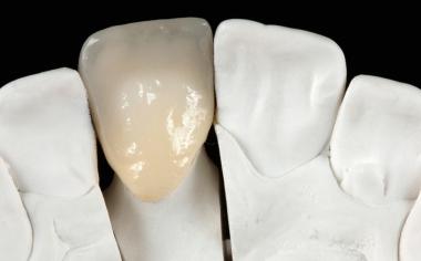 Abb. 4: Die fertige Krone auf dem Modell in der Ansicht von palatinal.