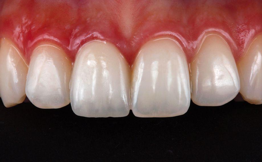 Abb. 10, Ergebnis: Die Krone integrierte sich absolut harmonisch in den Zahnbogen und zeigte ein hochästhetisches Farb- und Lichtspiel.