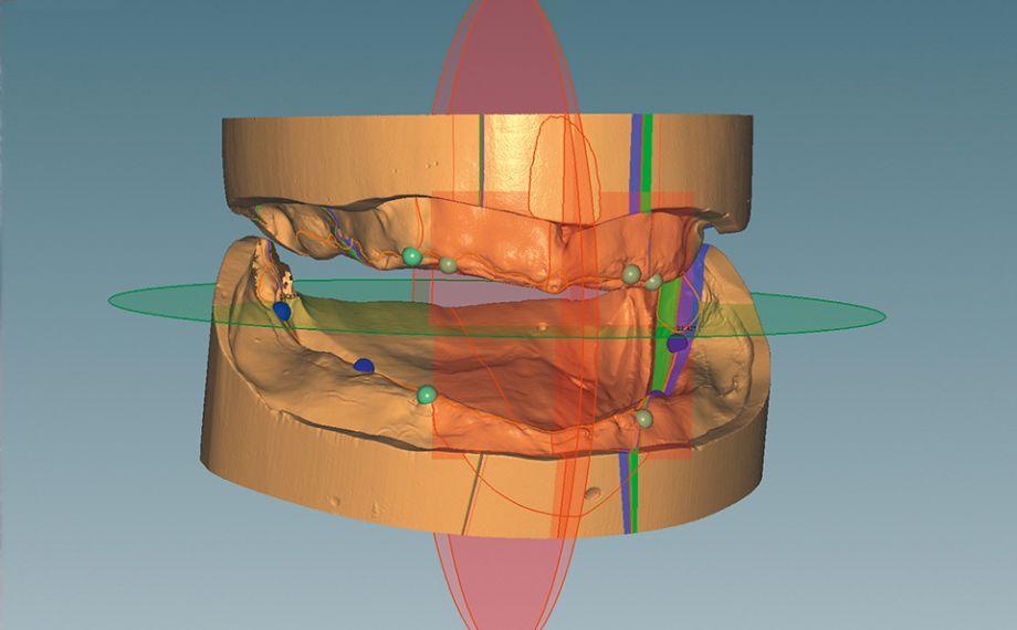 Abb. 3: Die CAD-Software Ceramill Mind führte durch die virtuelle Modellanalyse nach TiF®.