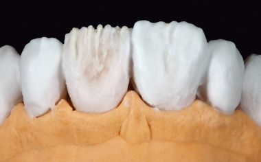Fig. 6 The final shaping of the six veneers was performed using ENAMEL light.