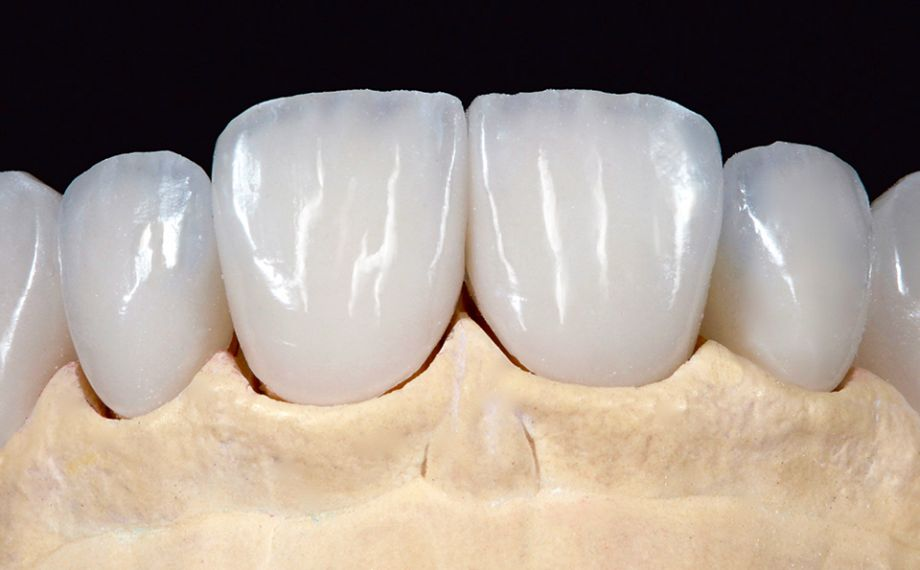 Fig. 7 The absolutely natural appearance of the six veneers was already visible in the master model.