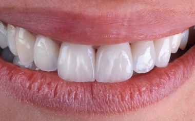 RESULTS A highly esthetic smile was created with ease.