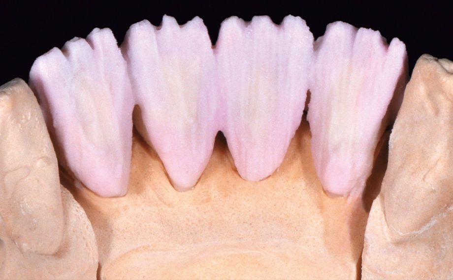Fig. 4 A 50:50 mixture of DENTINE A 3.5 and DENTINE MODIFIER copper was applied palatally.