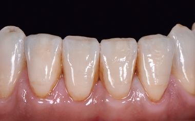 RESULTS A highly esthetic result was achieved using VITA LUMEX AC.