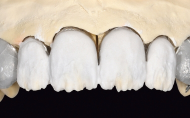 Fig. 12 The dentin section was layered with LUMINARY 1 (white) and DENTINE 1M1.