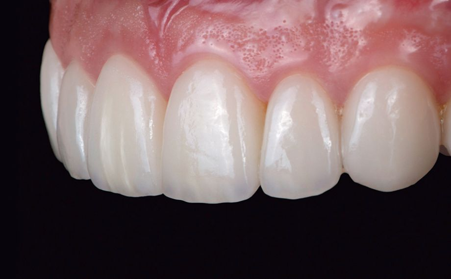 Fig. 16 The veneers showed a highly esthetic appearance in terms of shape and color.