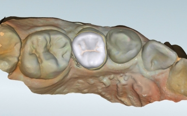 Fig. 6 The virtual design in occlusal view before nesting in the virtual block.