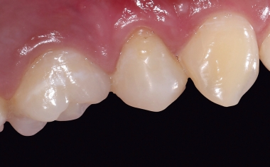 Fig. 14 During the follow-up after three months, healthy gingival conditions appeared.